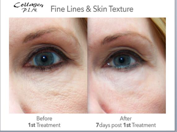 Fine_Lines________Wrinkles